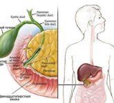 Дисфункция сфинктера Одди: лечение и осложнения