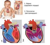 Изолированная декстрокардия - правостороннее расположение сердца