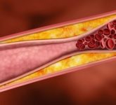 Что такое холестерин и как с ним бороться