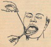 Охлаждение хлорэтилом - устаревший способ местной анестезии