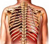 Сотрясение грудной клетки (commotio thoracis)