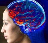 Инсульт мозга - голодание мозга