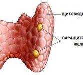 Изменения в костях при гипопаратиреозе