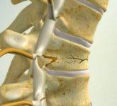 Переломо-вывихи позвонков и их рентгенодиагностика