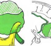 Удаление менингиом ольфакторной ямки