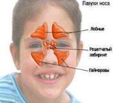 Синусит: воспаление внутри