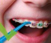 Чистка полости рта с ирригатором