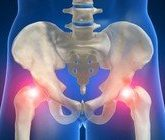 Эффективное лечение артрита тазобедренного сустава